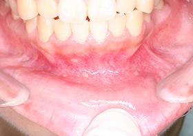 歯茎 でき もの 赤い